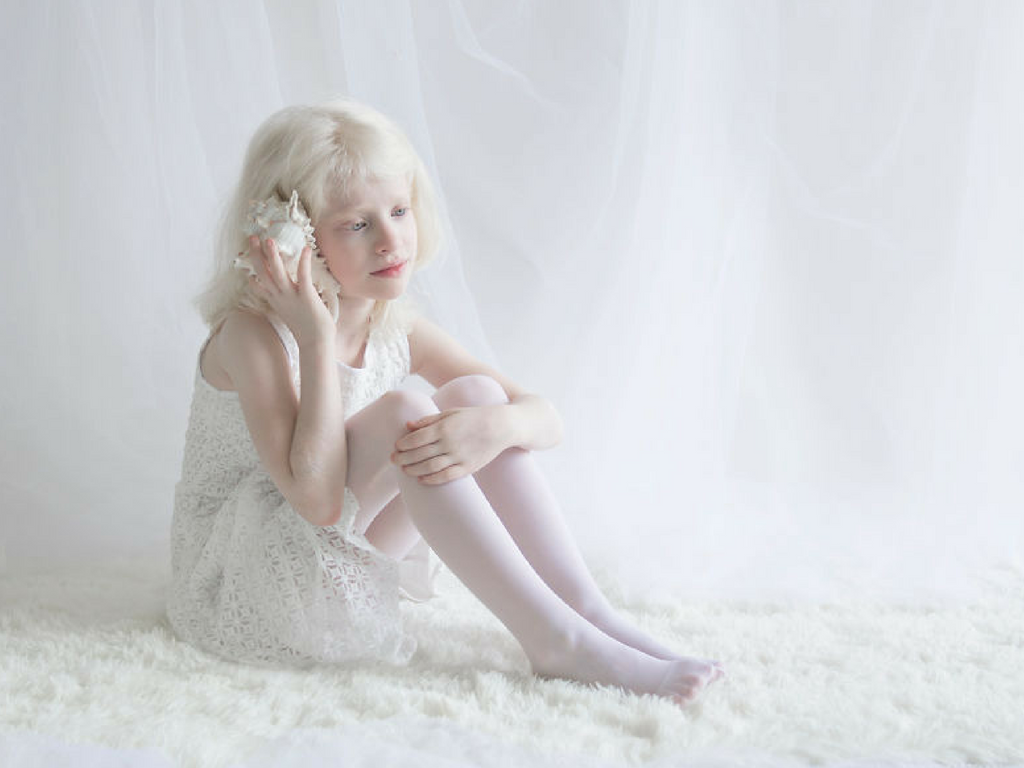 Israeli Photographer Captures The Beauty of People With Albinism In A Fairytale Photo Series